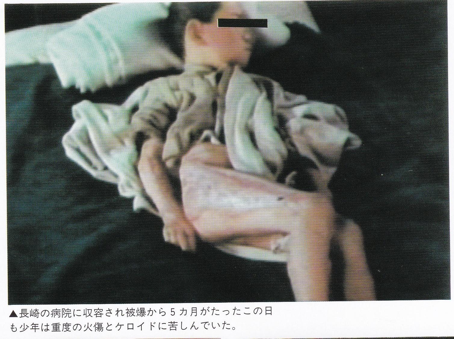 原爆の被害者