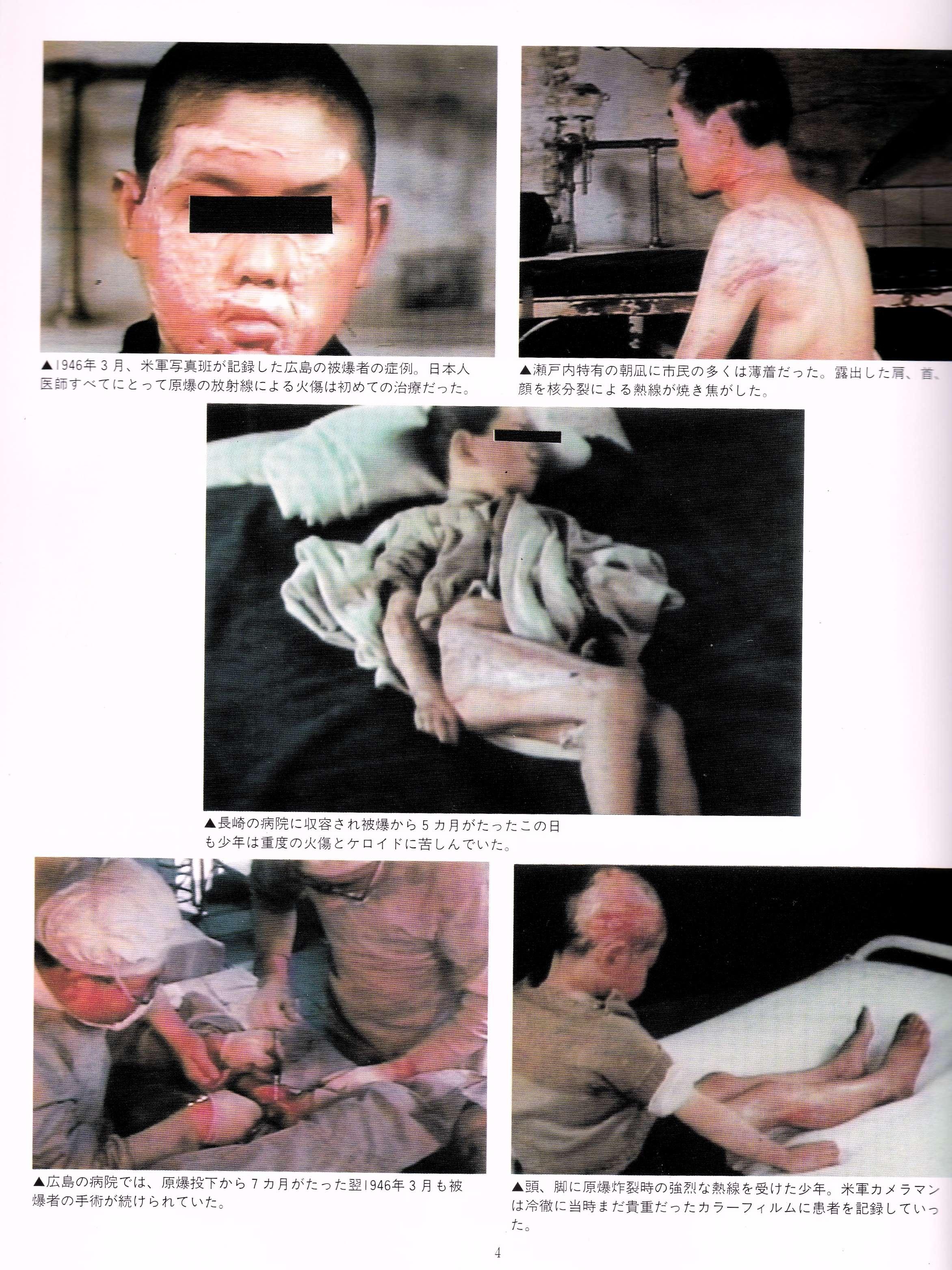 原爆の被害者 (2)_InPixio
